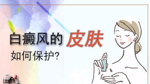 女性白癜风有哪些常见的症状